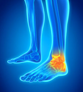 foot ankle pain foot ankle injury foot surgeon foot surgery