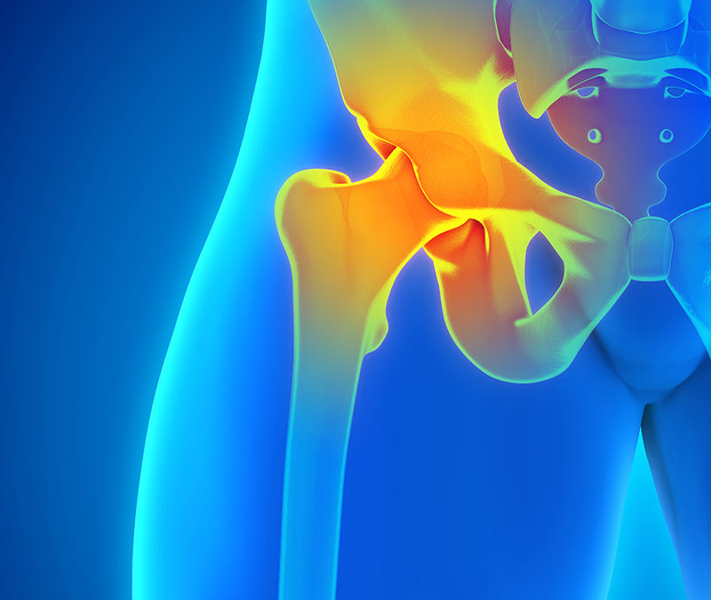 Anterior vs. Posterior Hip Replacements