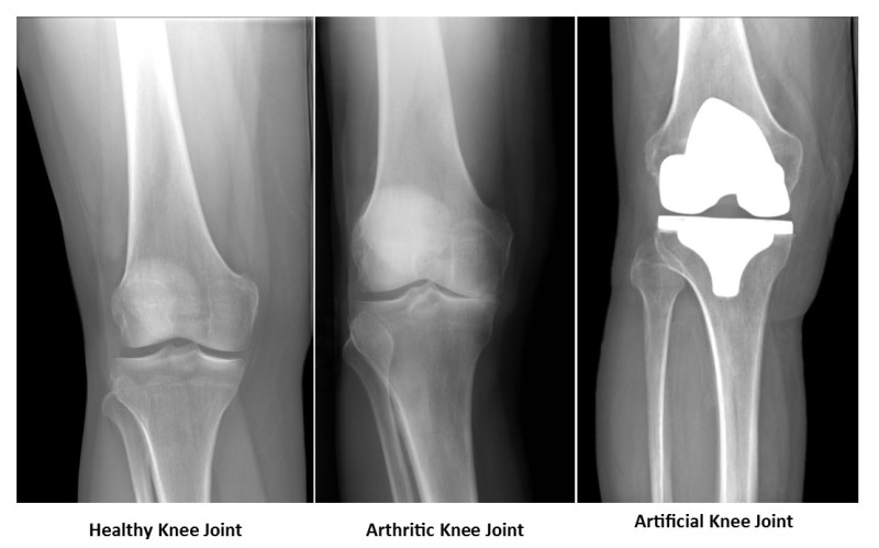 Image result for photos, knee replacements