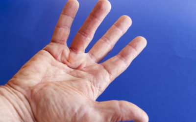 New Treatment for an Old Disease: Dupuytren's Contracture
