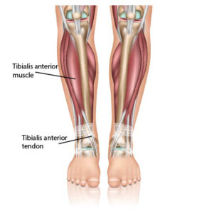 Ankle Tendonitis Anterior Tibial Tendonitis