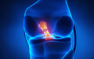 Graft Choices for ACL Repair