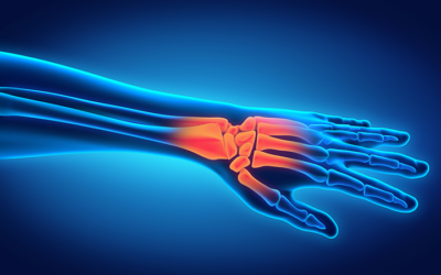 5 Common Symptoms of Carpal Tunnel Syndrome